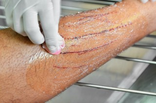 Cat Bite Injuries Amp Cat Scratch Fever What Are The Risks